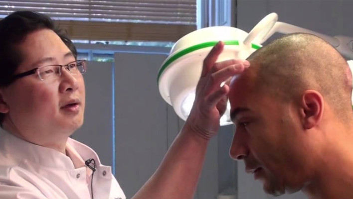 Hair Loss Stem Cell Therapy: A New Technique