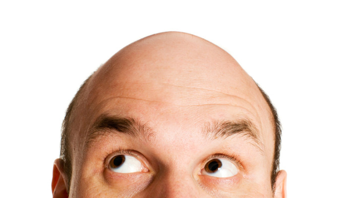 Hair Loss Treatment: Do Not Fret Little Fella, There's Hope!