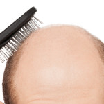 ahairlosscureHair diseases resulting into hair loss