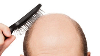 Hair diseases resulting into hair loss