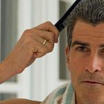 ahairlosscureMale Hair Loss Natural Hair Loss Treatment
