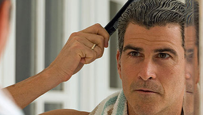 Male Hair Loss: Natural Hair Loss Treatment