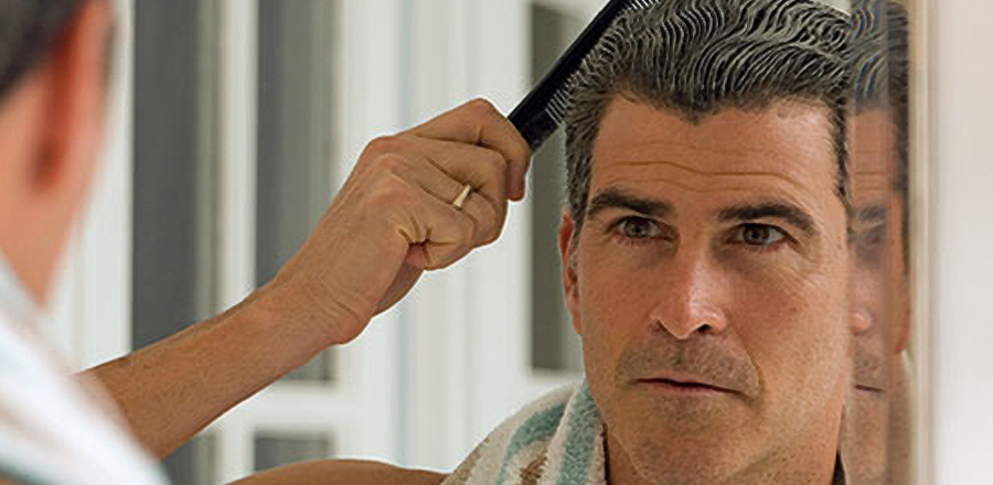 ahairlosscureMale Hair Loss Natural Hair Loss Treatment